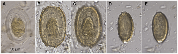 Eggs of parasitic nematodes isolated from coprolites of the giant New Zealand moas. (Images from Wood et al., 2013)
