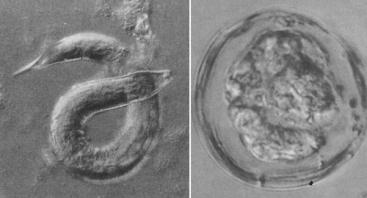 The nematode Strongyloides shastensis and coccidian Archeococcidia nothrotheriopsae once foraged in the digestive tracts of Shasta ground sloth. Their habitat disappeared at the end of the Pleistocene, and as a result they is now likely extinct. Images from Schmidt & Duszynski (1992).